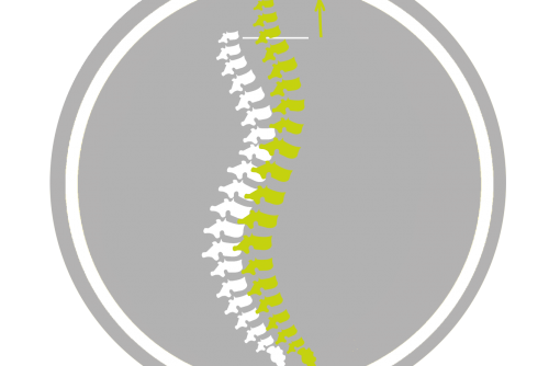 Gezieltes Rückentraining