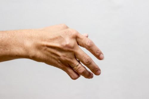 Wenn die Finger schmerzen