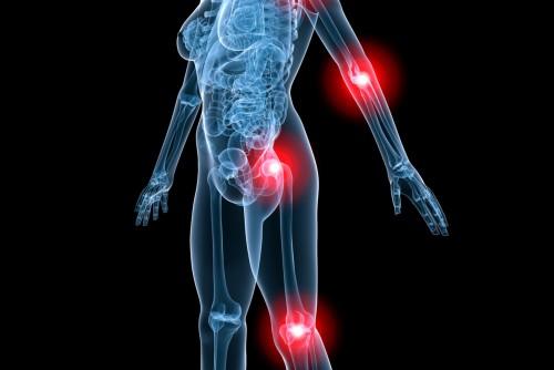 Arthritis - Rheuma
