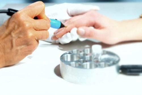 Elektroakupunktur nach Dr. Voll
